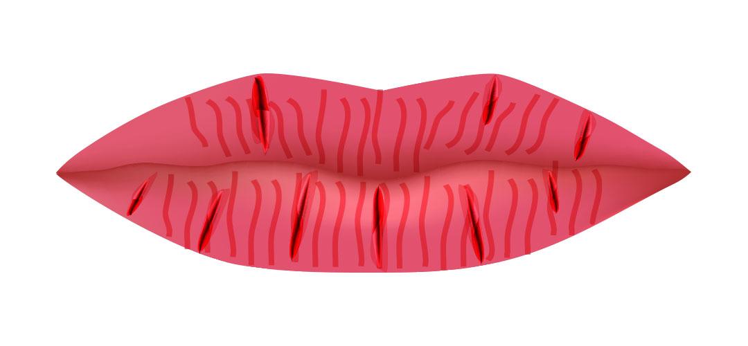 lips-fissure